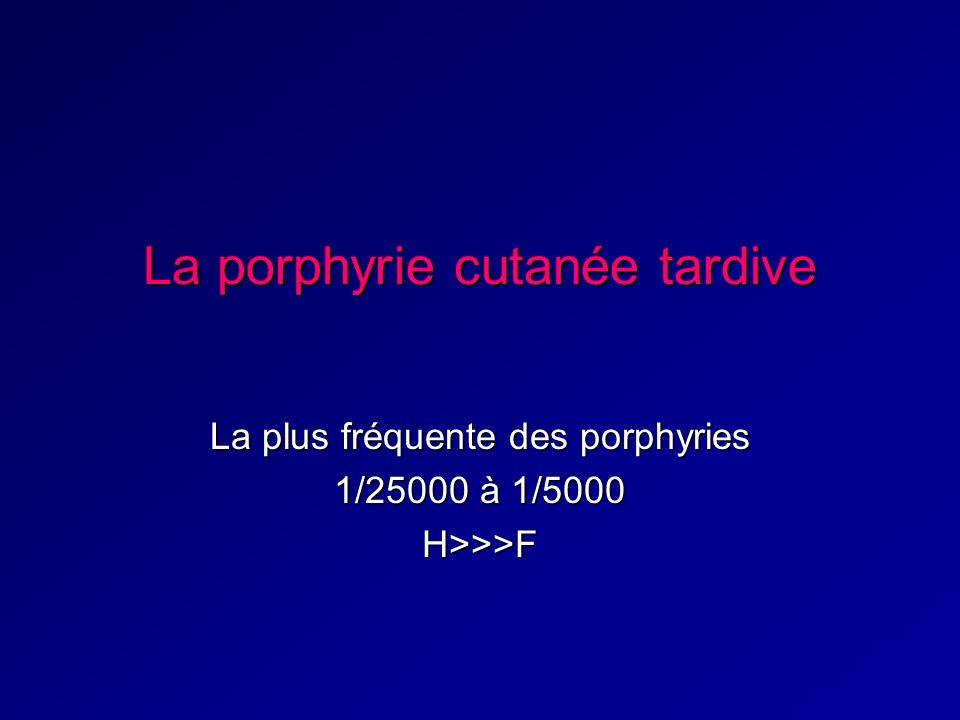 La porphyrie cutanée tardive La plus fréquente des porphyries 1/25000 à 1/5000 H>>>F