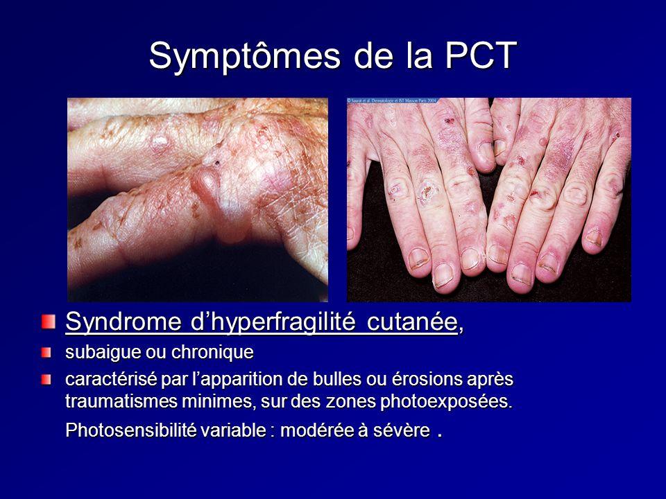 Symptômes de la PCT Syndrome dhyperfragilité cutanée, subaigue ou chronique caractérisé par lapparition de bulles ou érosions après traumatismes minimes, sur des zones photoexposées.