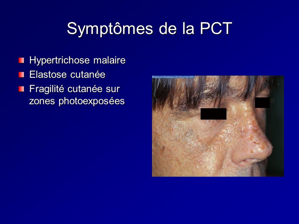 Hypertrichose malaire Elastose cutanée Fragilité cutanée sur zones photoexposées