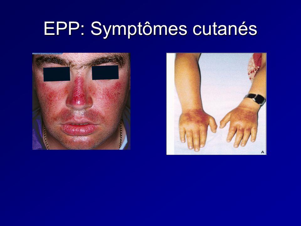 EPP: Symptômes cutanés