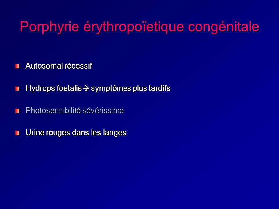 Porphyrie érythropoïetique congénitale Autosomal récessif Hydrops foetalis symptômes plus tardifs Photosensibilité sévérissime Urine rouges dans les langes