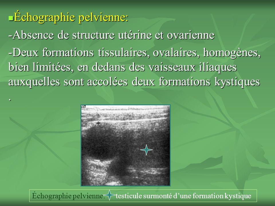 Échographie pelvienne: Échographie pelvienne: -Absence de structure utérine et ovarienne -Deux formations tissulaires, ovalaires, homogènes, bien limitées, en dedans des vaisseaux iliaques auxquelles sont accolées deux formations kystiques.
