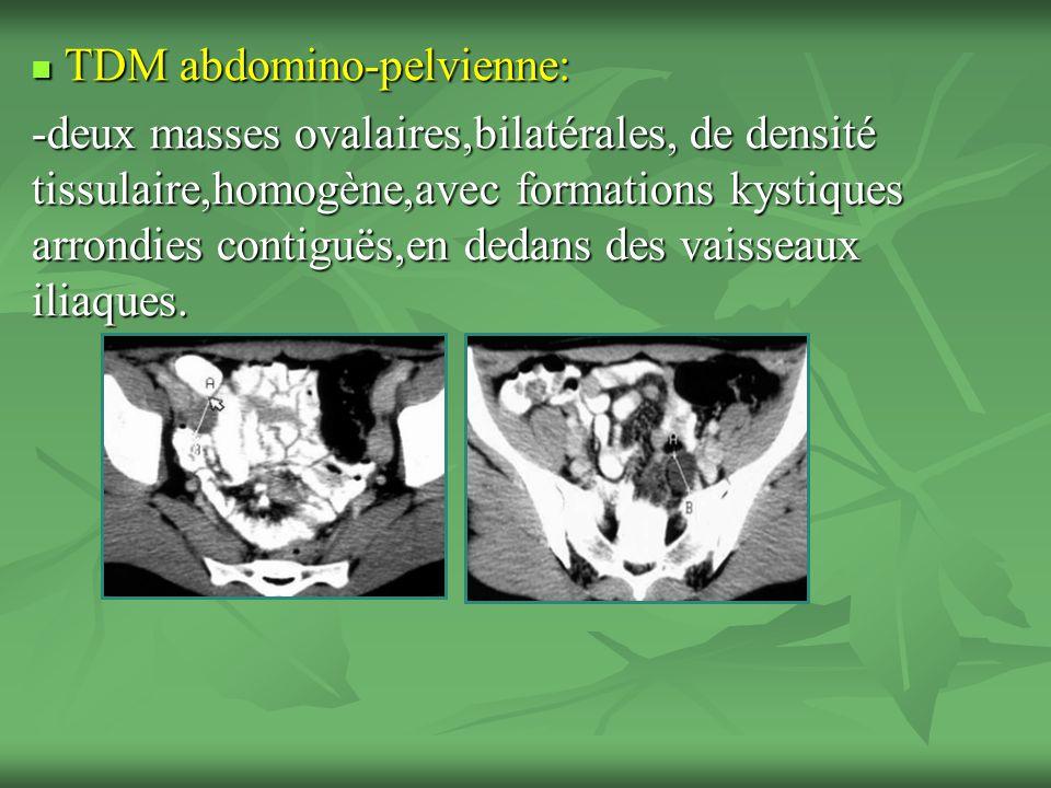 TDM abdomino-pelvienne: TDM abdomino-pelvienne: -deux masses ovalaires,bilatérales, de densité tissulaire,homogène,avec formations kystiques arrondies contiguës,en dedans des vaisseaux iliaques.