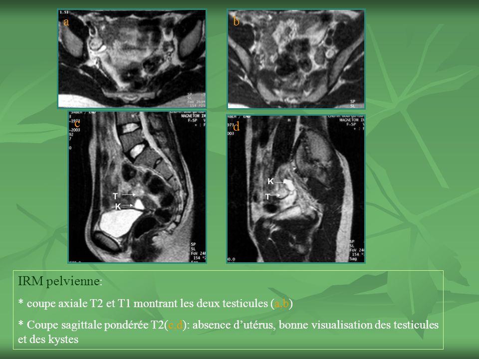 IRM pelvienne : * coupe axiale T2 et T1 montrant les deux testicules (a,b) * Coupe sagittale pondérée T2(c,d): absence dutérus, bonne visualisation des testicules et des kystes ab c d