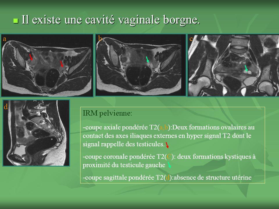 Il existe une cavité vaginale borgne.Il existe une cavité vaginale borgne.