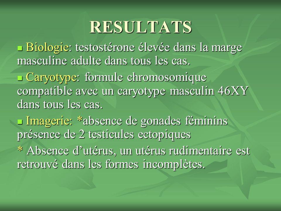 Caryotype: 46XY Caryotype: 46XY La patiente a été opérée(gonadectomie bilatérale).