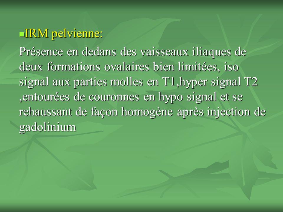 IRM pelvienne: IRM pelvienne: Présence en dedans des vaisseaux iliaques de deux formations ovalaires bien limitées, iso signal aux parties molles en T1,hyper signal T2,entourées de couronnes en hypo signal et se rehaussant de façon homogène après injection de gadolinium