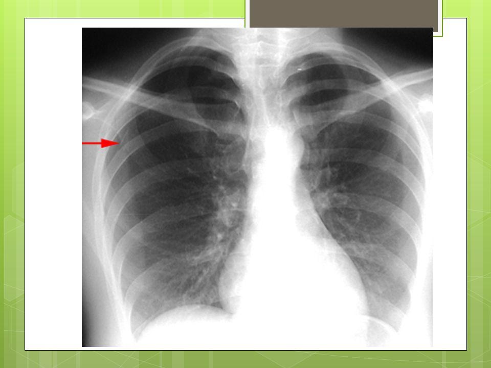 Pneumothorax spontané Incidence: 7.4/100 000 par année chez les hommes, 1.2/100 000 chez les femmes Typiquement homme dans la vingtaine, mince et grand.
