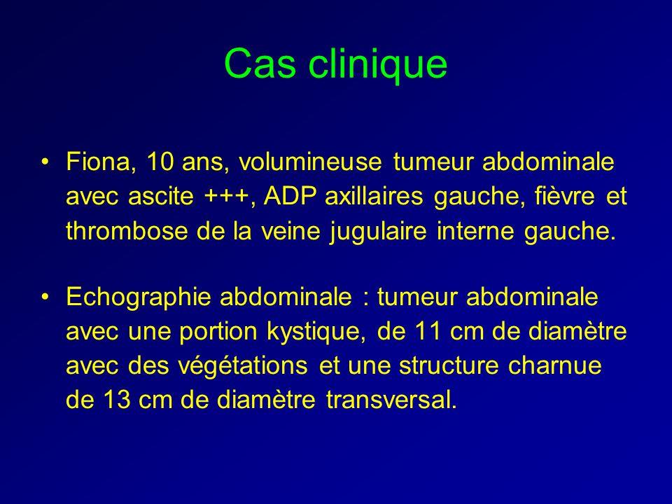 Cas clinique Fiona, 10 ans, volumineuse tumeur abdominale avec ascite +++, ADP axillaires gauche, fièvre et thrombose de la veine jugulaire interne ga