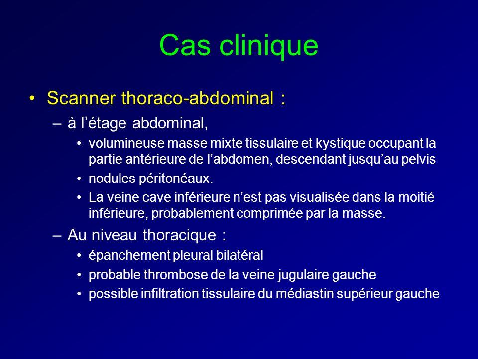 Cas clinique Scanner thoraco-abdominal : –à létage abdominal, volumineuse masse mixte tissulaire et kystique occupant la partie antérieure de labdomen
