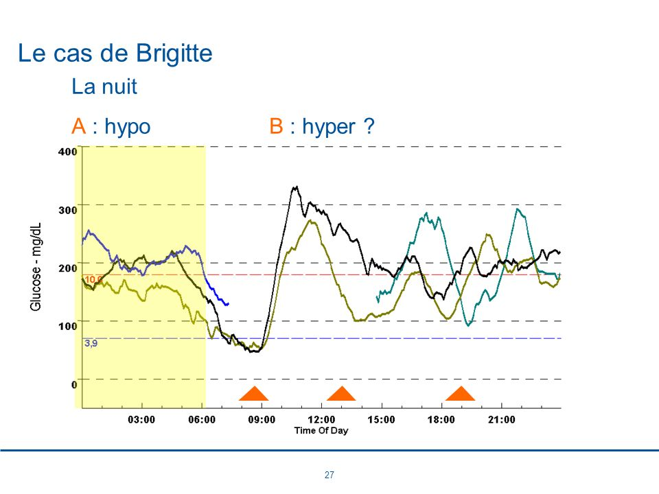 27 Le cas de Brigitte La nuit A : hypoB : hyper ?