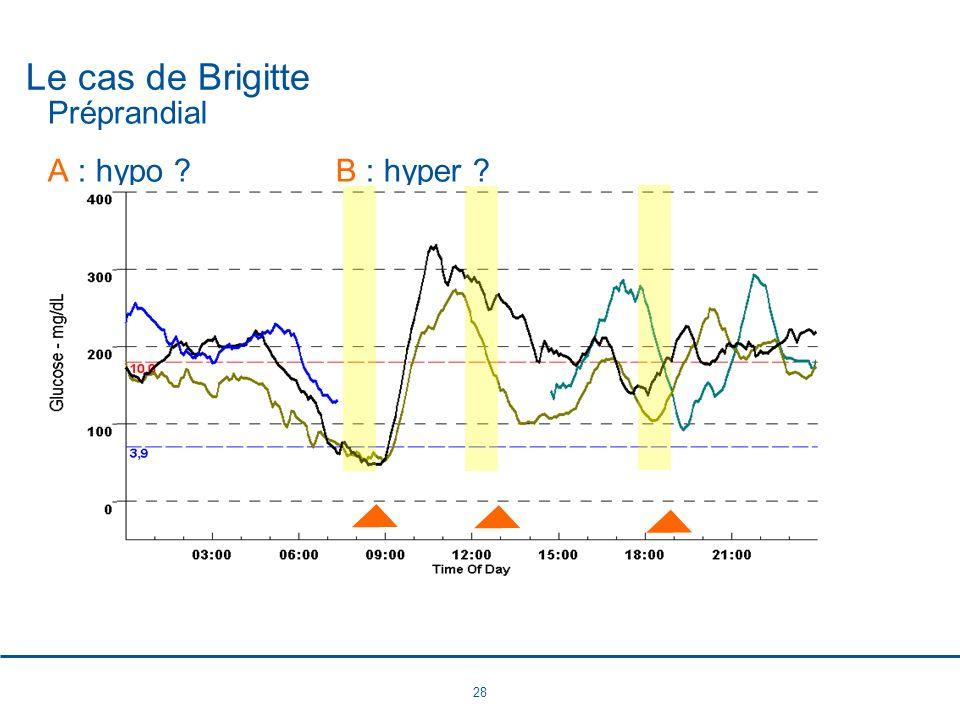 28 Le cas de Brigitte Préprandial A : hypo ?B : hyper ?