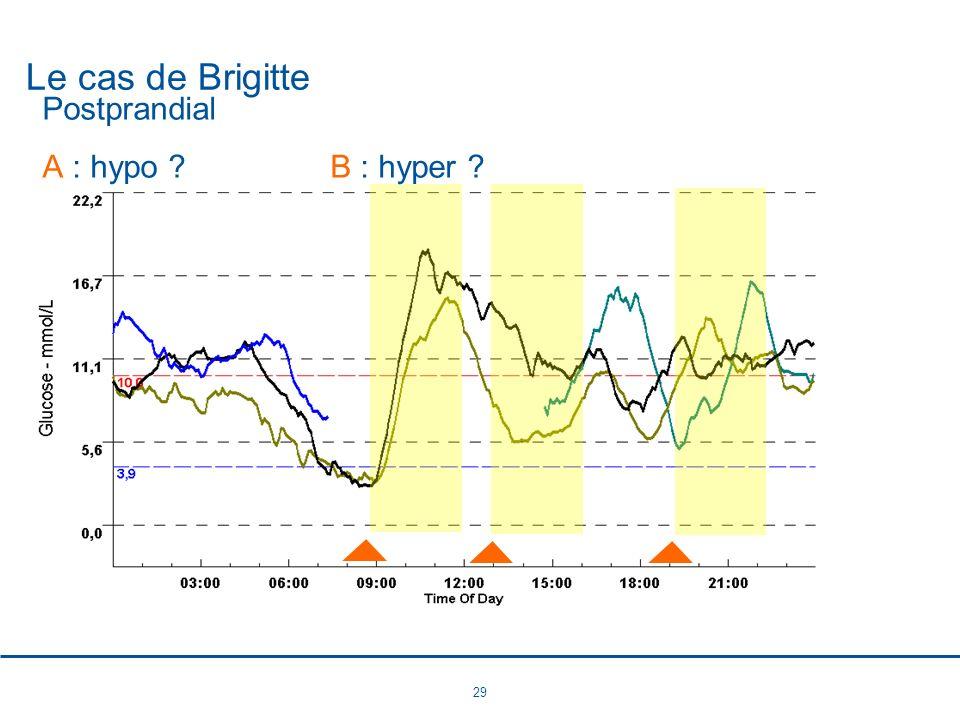 29 Le cas de Brigitte Postprandial A : hypo ?B : hyper ?