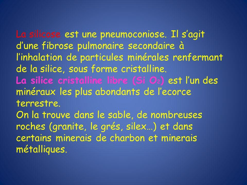 La silicose est une pneumoconiose. Il sagit dune fibrose pulmonaire secondaire à linhalation de particules minérales renfermant de la silice, sous for