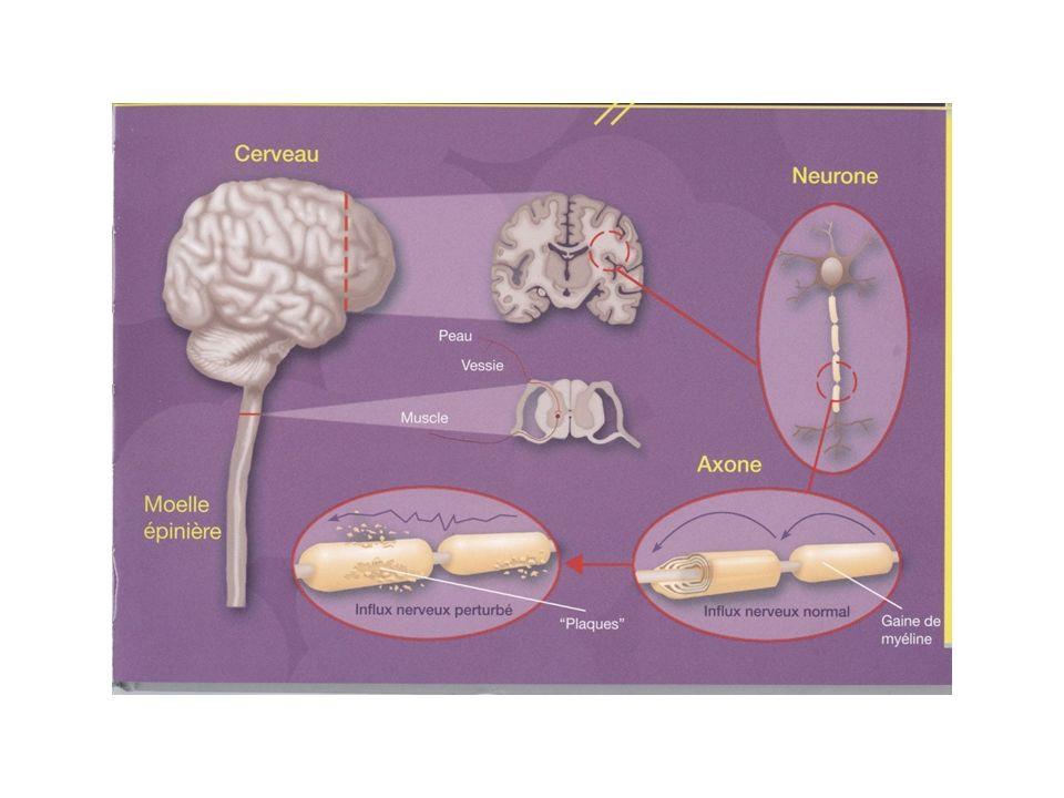 Cest quoi la SEP constitué du Maladie du système nerveux central (SNC) qui est constitué du cerveau et la moelle épinière. Comparé avec le fil électri