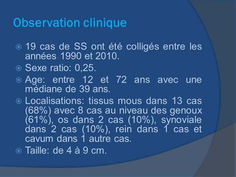 Histopathologie Biphasiques: 7 cas (36,85%) Monophasiques: 9 cas (43,25%) peu différenciés: 3 cas (15,70%).
