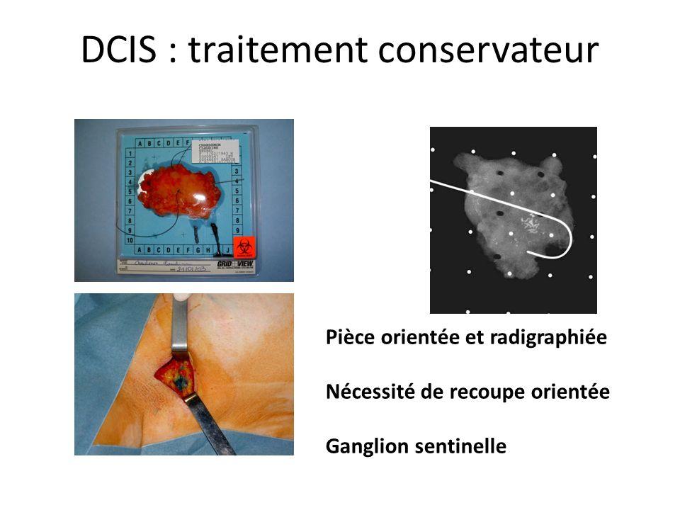 DCIS : traitement conservateur Pièce orientée et radigraphiée Nécessité de recoupe orientée Ganglion sentinelle