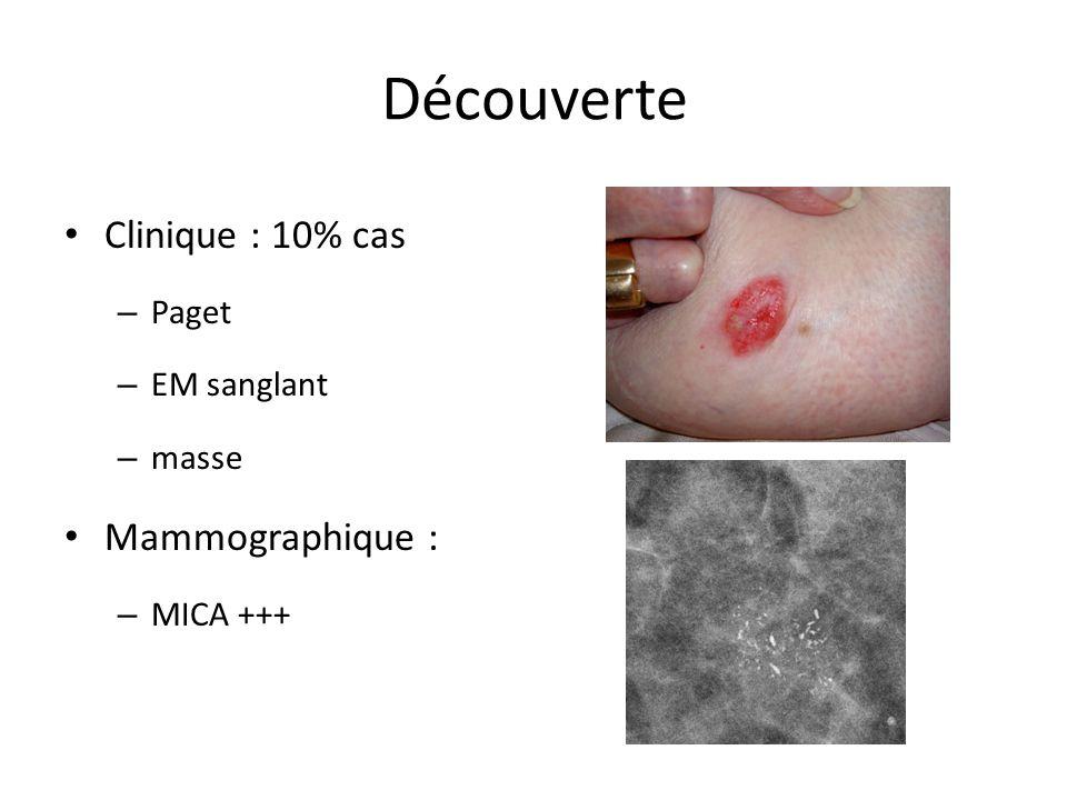 Découverte Clinique : 10% cas – Paget – EM sanglant – masse Mammographique : – MICA +++