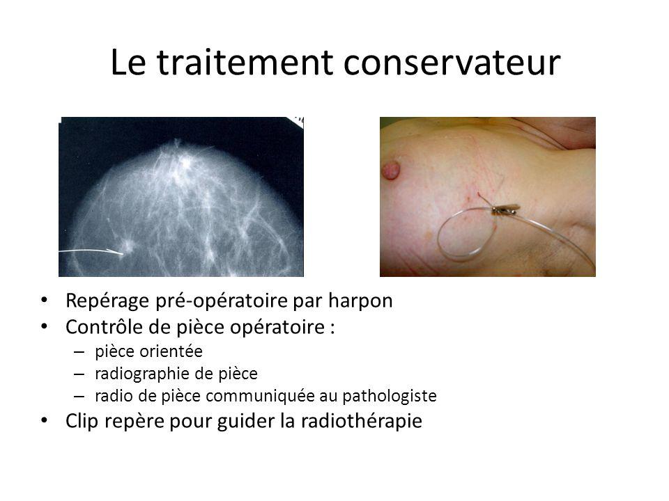 Le traitement conservateur Repérage pré-opératoire par harpon Contrôle de pièce opératoire : – pièce orientée – radiographie de pièce – radio de pièce
