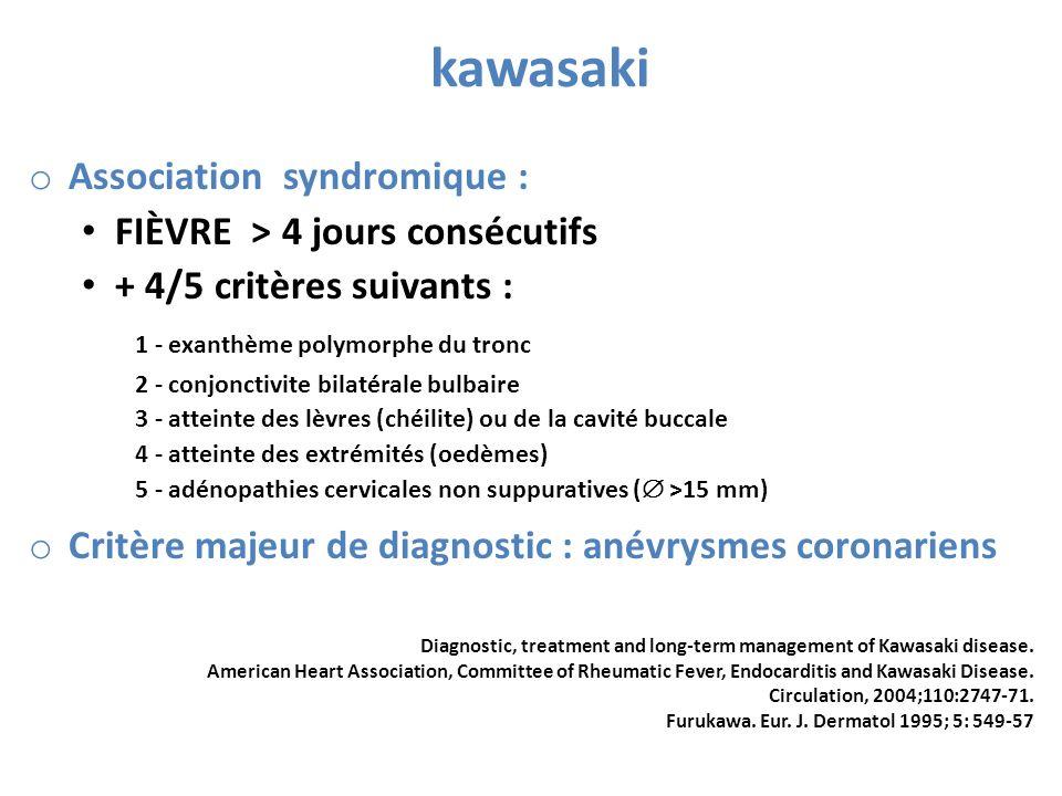 kawasaki o Association syndromique : FIÈVRE > 4 jours consécutifs + 4/5 critères suivants : 1 - exanthème polymorphe du tronc 2 - conjonctivite bilaté