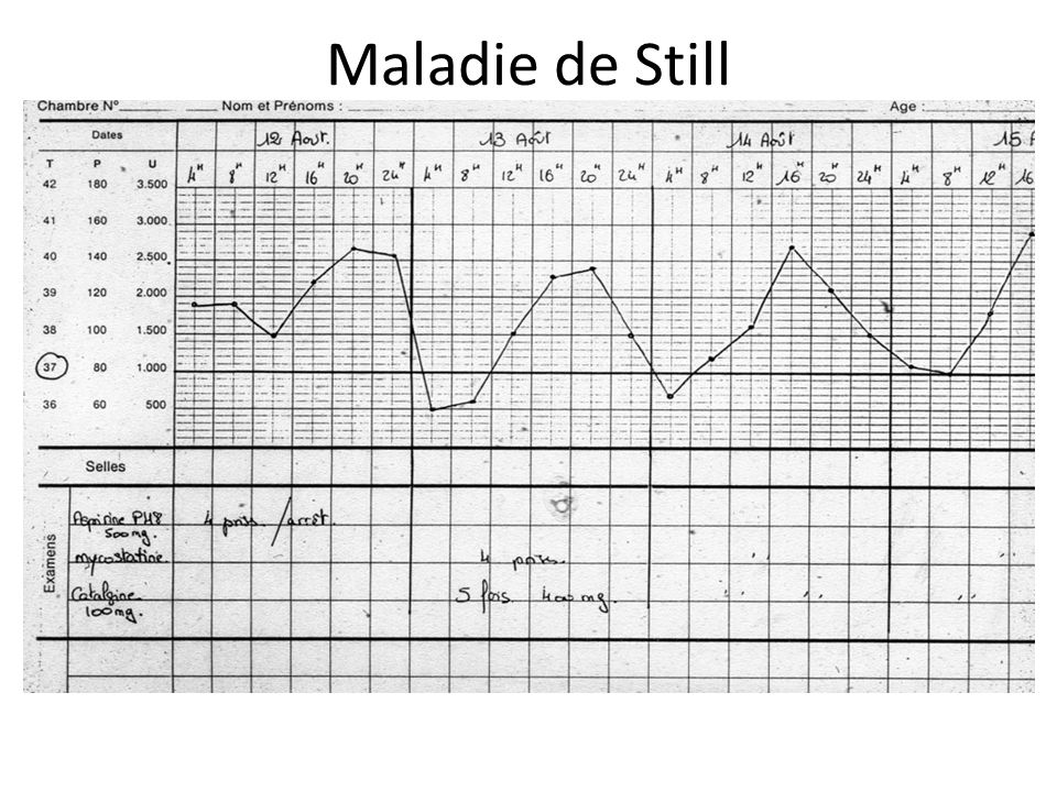 Examens de 1 ère intention : – Courbe thermique toutes les 6 heures – NFS,VS,CRP – IDR tuberculine – Hémostase,fibrinogène – Transaminases – ECBU,protéinurie – Hémocultures – EProtéines – Radio du thorax Examens de 2 ème intention - Ponction Lombaire - Sérologies fonction facteurs de risque - Echographie cardiaque - Tomodensimètre - Scintigraphies - Endoscopies digestives - Ponction de moelle - Catécholamines urinaires - Biopsies d organe -ECA,Ac antinucleaire,anti DNA