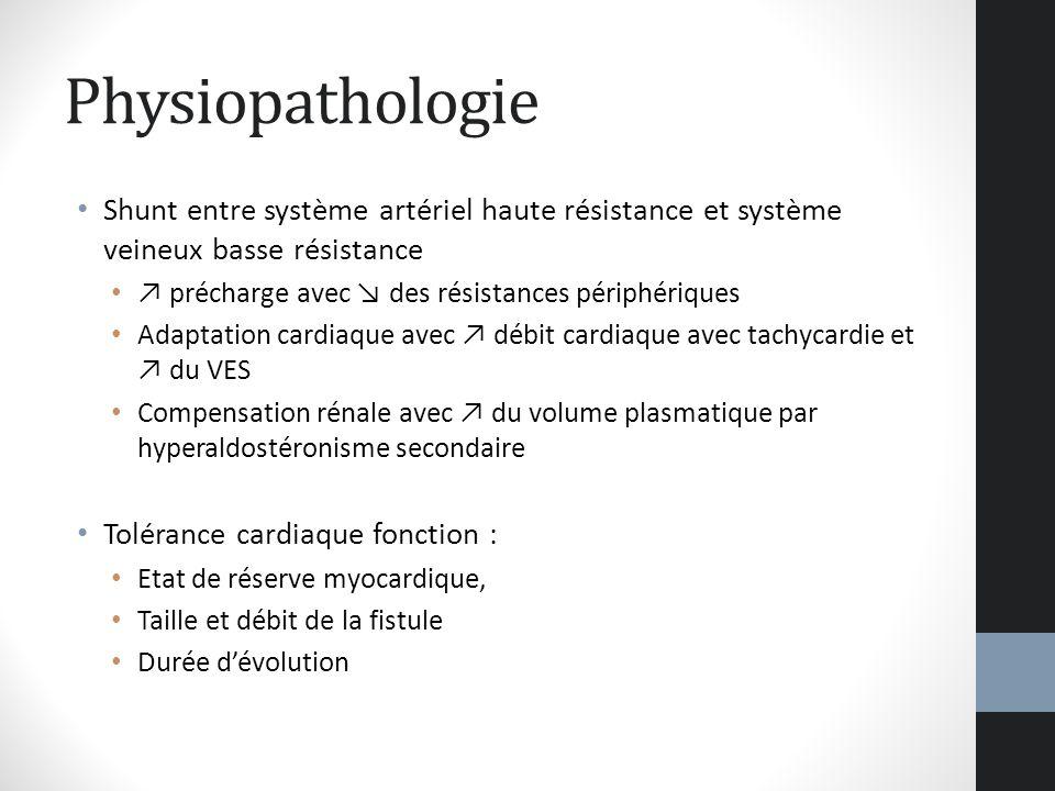 Physiopathologie Shunt entre système artériel haute résistance et système veineux basse résistance précharge avec des résistances périphériques Adapta