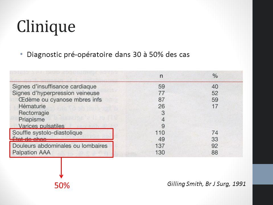 Clinique Diagnostic pré-opératoire dans 30 à 50% des cas Gilling Smith, Br J Surg, 1991 50%