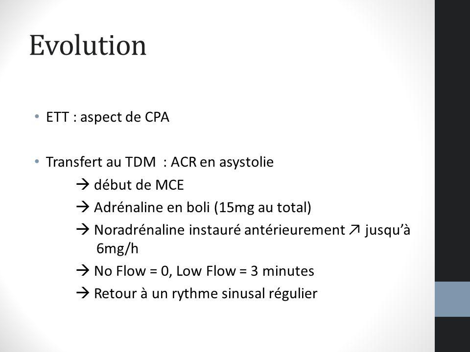 Evolution ETT : aspect de CPA Transfert au TDM : ACR en asystolie début de MCE Adrénaline en boli (15mg au total) Noradrénaline instauré antérieuremen