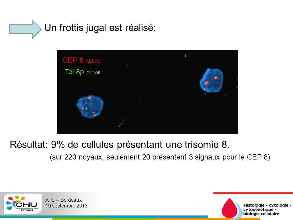 ATC – Bordeaux 19 septembre 2013 Un frottis jugal est réalisé: Résultat: 9% de cellules présentant une trisomie 8. (sur 220 noyaux, seulement 20 prése
