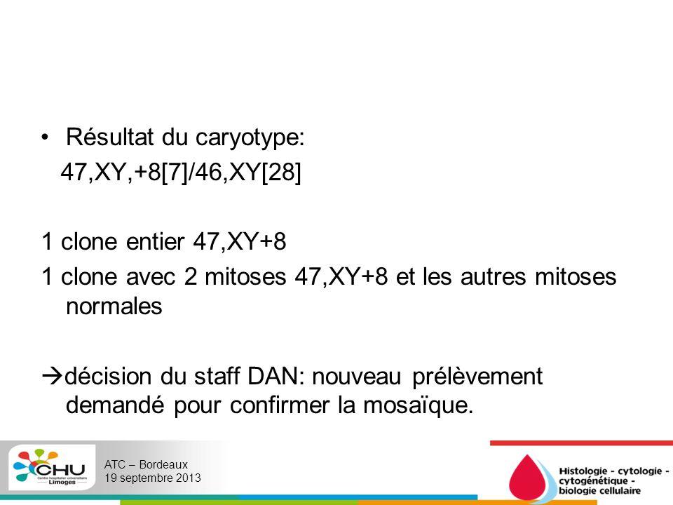 Résultat du caryotype: 47,XY,+8[7]/46,XY[28] 1 clone entier 47,XY+8 1 clone avec 2 mitoses 47,XY+8 et les autres mitoses normales décision du staff DA