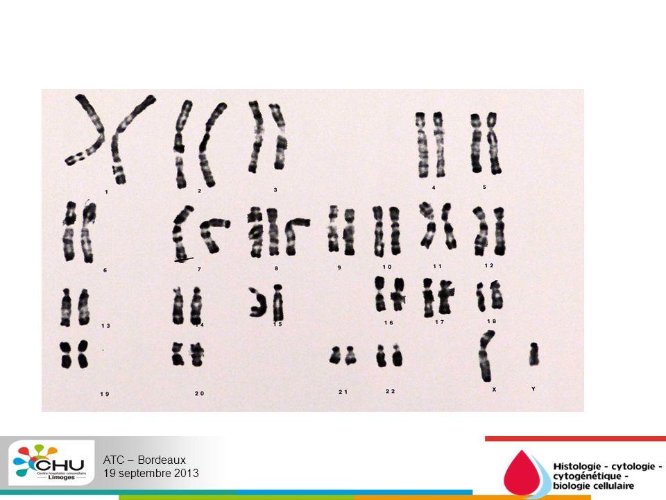 Un deuxième liquide amniotique est prélevé 15 jours plus tard: Sont apparus entre temps des SAE, notamment une pyélectasie bilatérale un hydramnios Résultat : 46,XY[28] Aucune mitose à 47,XY,+8 nest retrouvée ce 2 e LA.