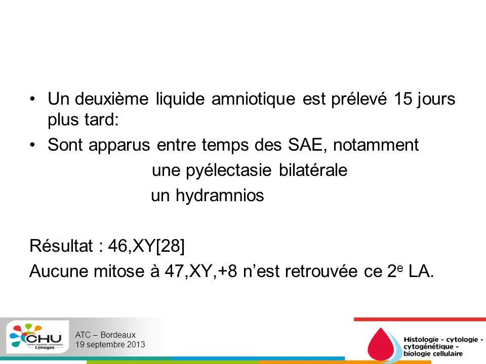 Un deuxième liquide amniotique est prélevé 15 jours plus tard: Sont apparus entre temps des SAE, notamment une pyélectasie bilatérale un hydramnios Ré