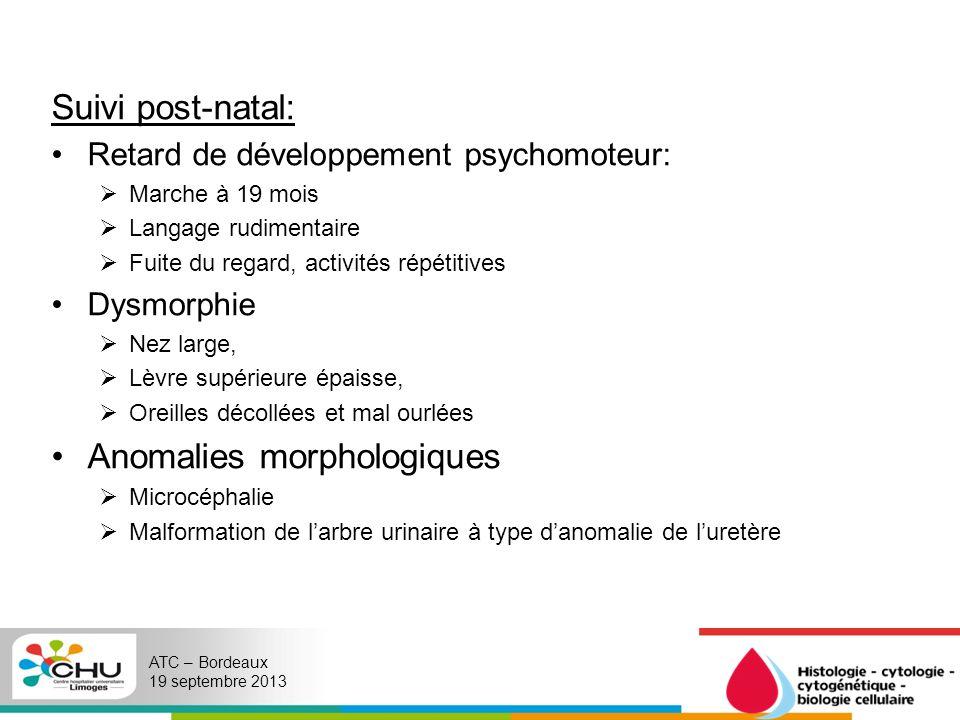 Un caryotype sanguin est demandé par la pédiatre en charge de MS en 2012.