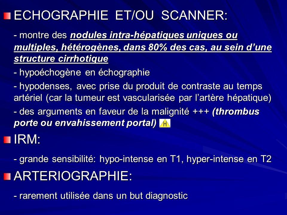 ECHOGRAPHIE ET/OU SCANNER: - montre des nodules intra-hépatiques uniques ou multiples, hétérogènes, dans 80% des cas, au sein dune structure cirrhotique - hypoéchogène en échographie - hypodenses, avec prise du produit de contraste au temps artériel (car la tumeur est vascularisée par lartère hépatique) - des arguments en faveur de la malignité +++ (thrombus porte ou envahissement portal) IRM: - grande sensibilité: hypo-intense en T1, hyper-intense en T2 ARTERIOGRAPHIE: - rarement utilisée dans un but diagnostic