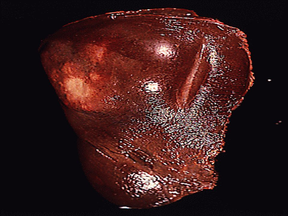 Cancer développé aux dépends des hépathocytes, hypervascularisé par lartère hépatique, limitée par une capsule, pouvant se nécroser ou se rompre et provoquer un hémopéritoine.