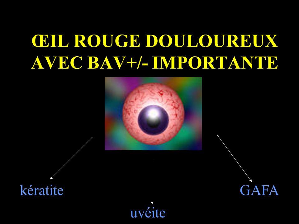 ŒIL ROUGE DOULOUREUX AVEC BAV+/- IMPORTANTE kératite uvéite GAFA