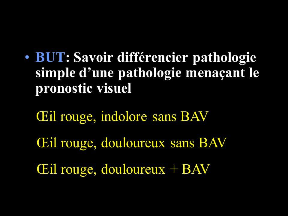 BUT: Savoir différencier pathologie simple dune pathologie menaçant le pronostic visuel Œil rouge, indolore sans BAV Œil rouge, douloureux sans BAV Œi