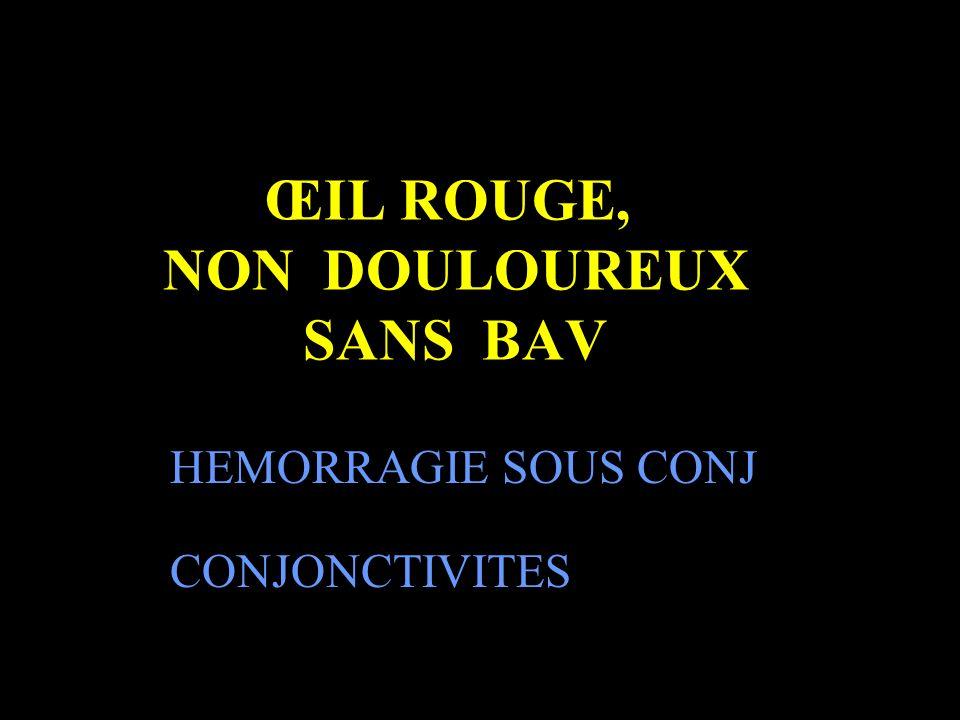 ŒIL ROUGE, NON DOULOUREUX SANS BAV CONJONCTIVITES HEMORRAGIE SOUS CONJ