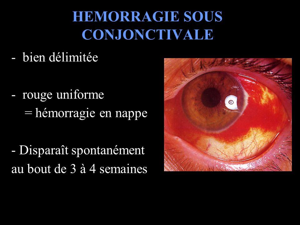 HEMORRAGIE SOUS CONJONCTIVALE -bien délimitée -rouge uniforme = hémorragie en nappe - Disparaît spontanément au bout de 3 à 4 semaines