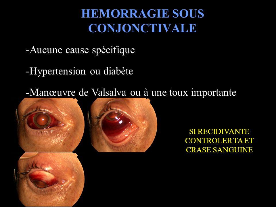 HEMORRAGIE SOUS CONJONCTIVALE -Aucune cause spécifique -Hypertension ou diabète -Manœuvre de Valsalva ou à une toux importante SI RECIDIVANTE CONTROLE