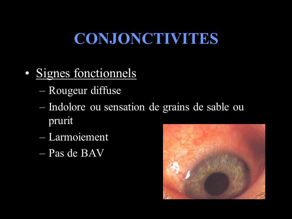CONJONCTIVITES Signes fonctionnels –Rougeur diffuse –Indolore ou sensation de grains de sable ou prurit –Larmoiement –Pas de BAV