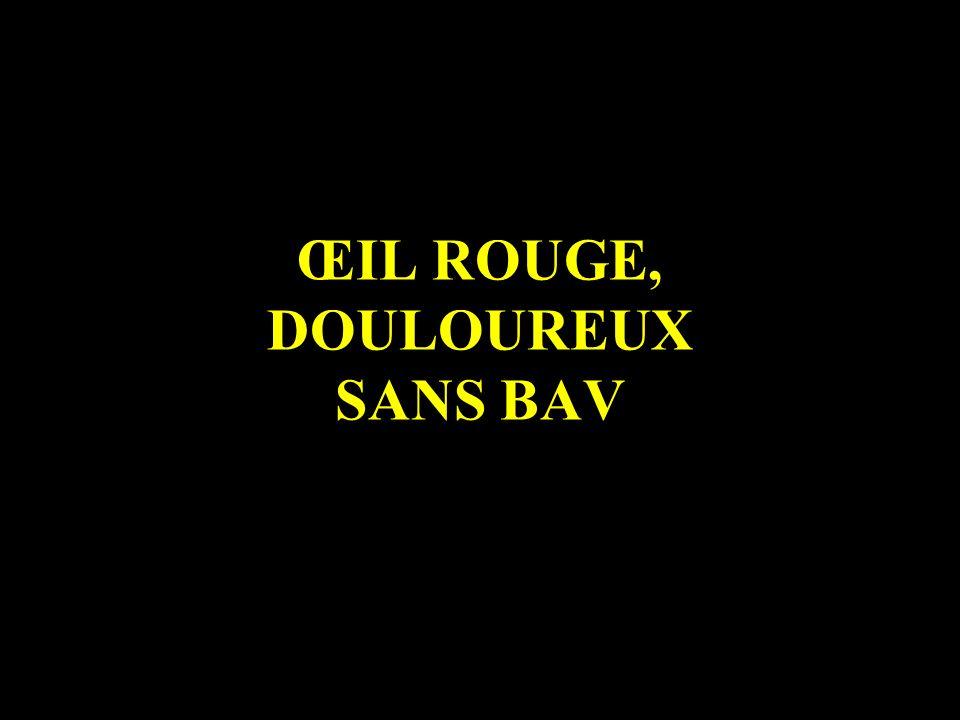 ŒIL ROUGE, DOULOUREUX SANS BAV