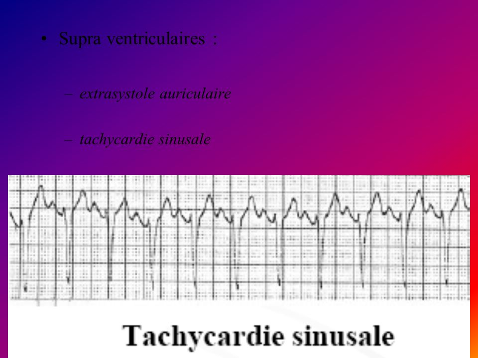 Supra ventriculaires : –extrasystole auriculaire –tachycardie sinusale –tachysystolie auriculaire paroxystique –flutter auriculaire –fibrillation auri