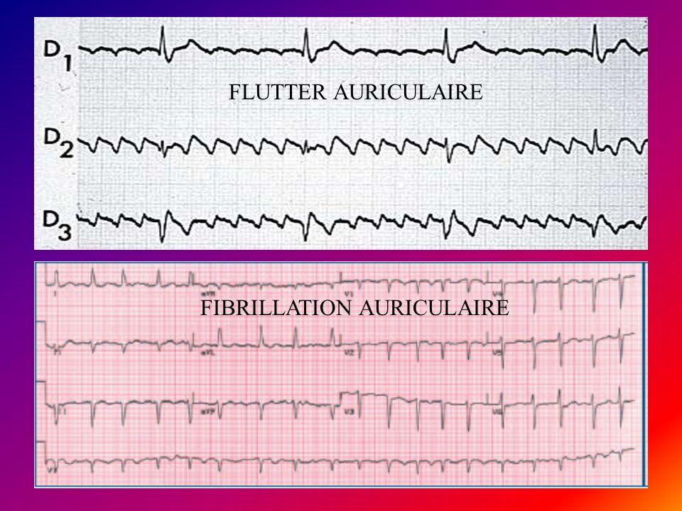 FLUTTER AURICULAIRE FIBRILLATION AURICULAIRE