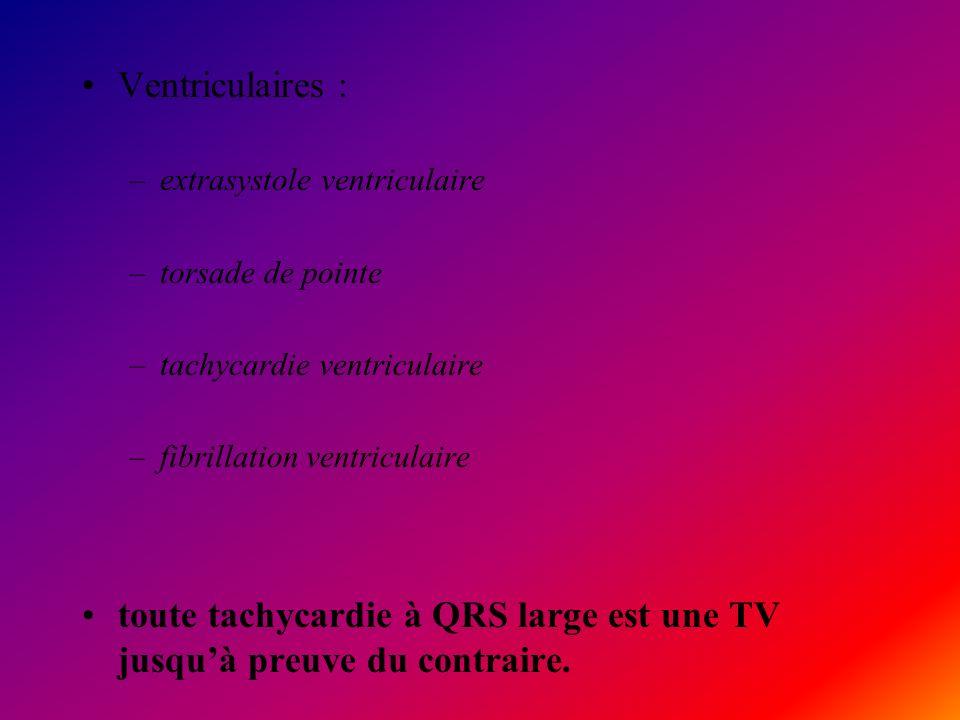 Ventriculaires : –extrasystole ventriculaire –torsade de pointe –tachycardie ventriculaire –fibrillation ventriculaire toute tachycardie à QRS large e