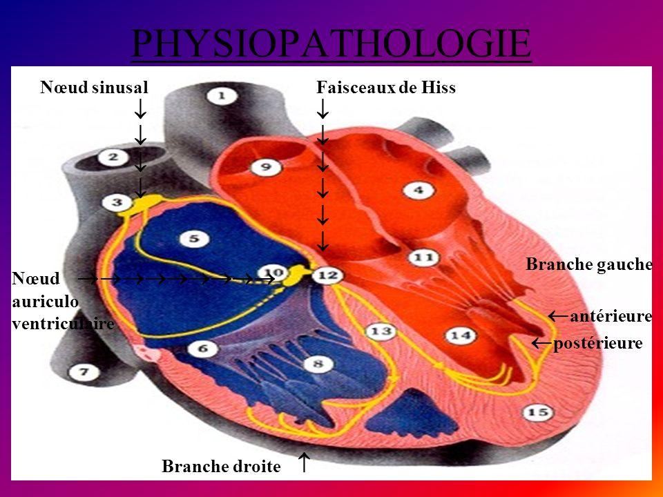 PHYSIOPATHOLOGIE Nœud sinusal Faisceaux de Hiss Branche droite Branche gauche antérieure postérieure Nœud auriculo ventriculaire