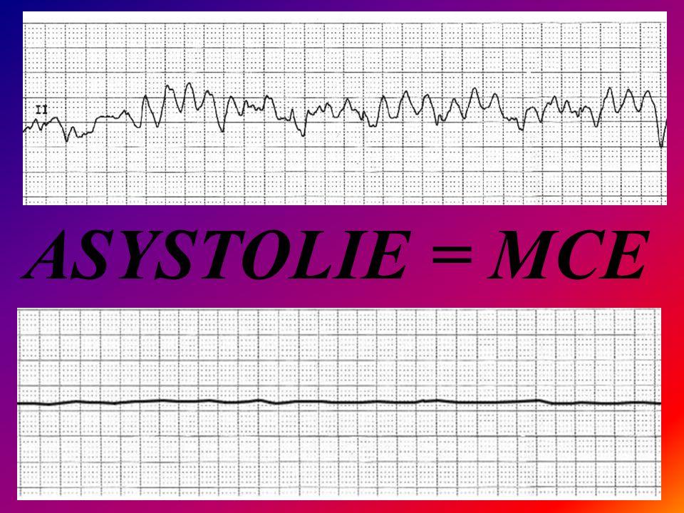 ASYSTOLIE = MCE