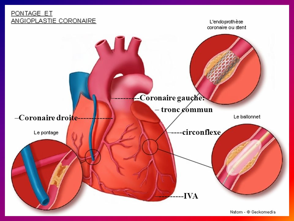 –Coronaire droite------------- –---------IVA –----circonflexe –---------Coronaire gauche: – tronc commun