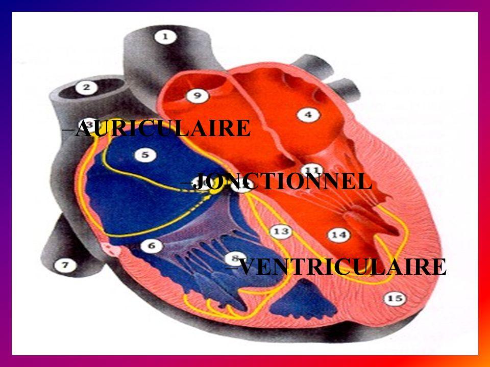 Ventriculaires : –extrasystole ventriculaire –torsade de pointe –tachycardie ventriculaire –fibrillation ventriculaire toute tachycardie à QRS large est une TV jusquà preuve du contraire.