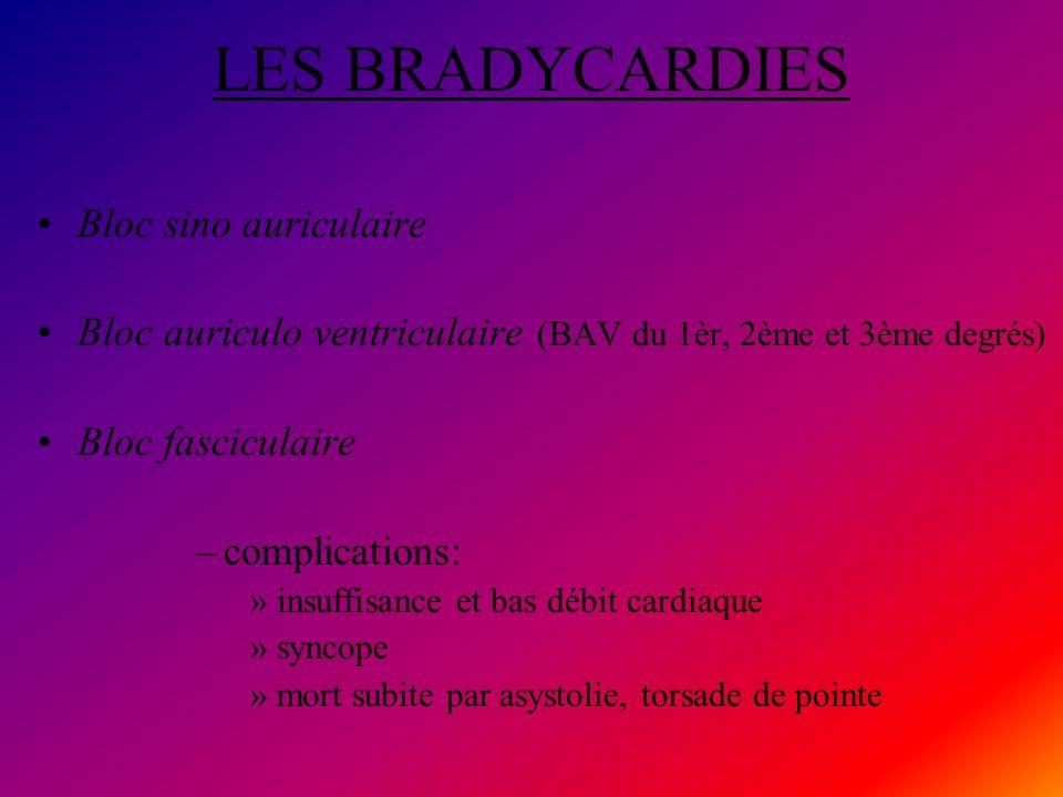 LES BRADYCARDIES Bloc sino auriculaire Bloc auriculo ventriculaire (BAV du 1èr, 2ème et 3ème degrés) Bloc fasciculaire –complications: »insuffisance e